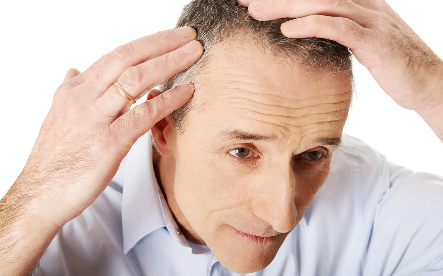 How To Find The Best Hair Transplant Clinic In South Delhi?