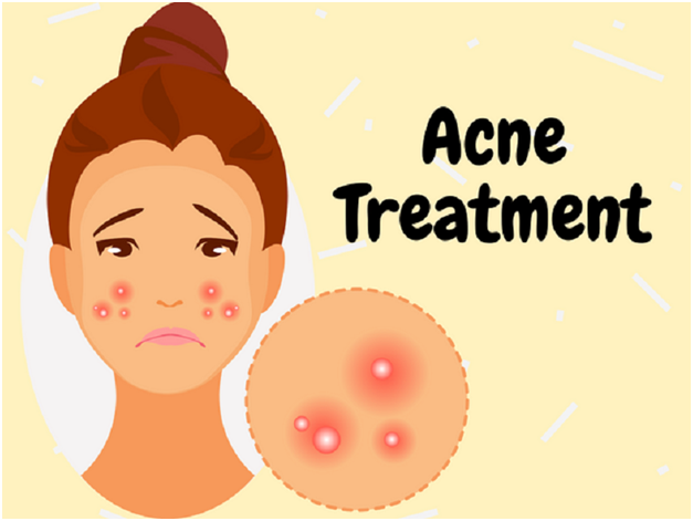 Laser Treatment – The Best Answer For Acne & Acne Scars?
